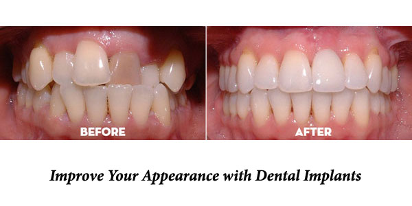 Dental-Implant-at-Eley-Family-Dental-in-Melbourne-Florida