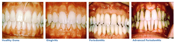Gum-Disease-Eley-Family-Dentistry