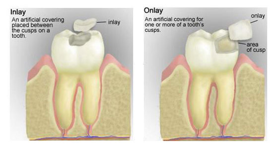 Inlay-and-Onlay-at-Eley-Family-Dentistry-in-Melbourne-Florida-Dentist