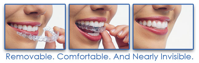 Invisalign-at-Eley-Family-Dentistry-in-Melbourne-Florida