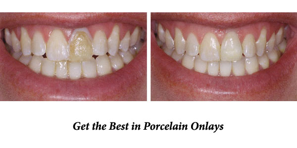 Porcelain-Onlays-at-Eley-Family-Dental-in-Melbourne-Florida