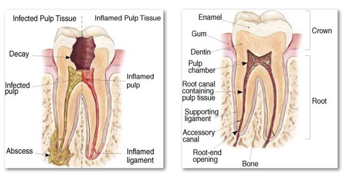 Root-Canal-Therapy-Eley-Family-Dentistry