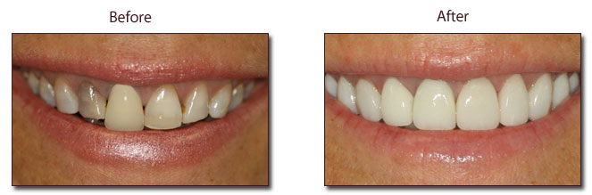 full-mouth-reconstruction-Eley-Family-Dentistry-Melbourne-Florida