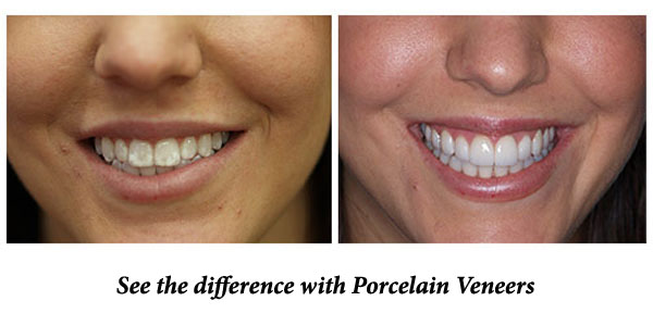 porcelain_veneers_Eley-Family-Dental-Melbourne-Florida